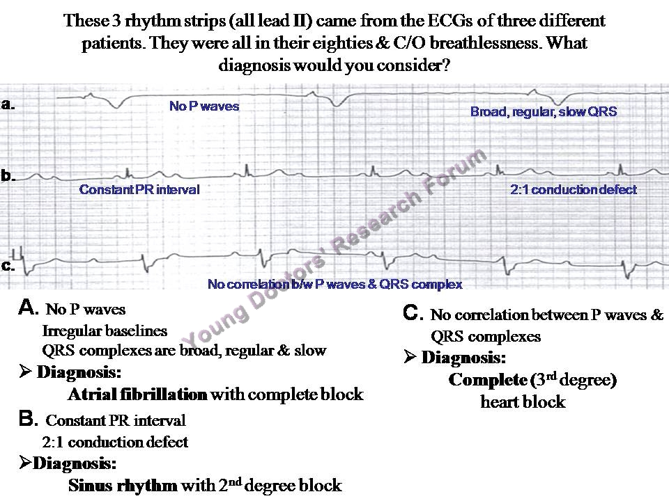 ecg made ridiculously simple pdf
