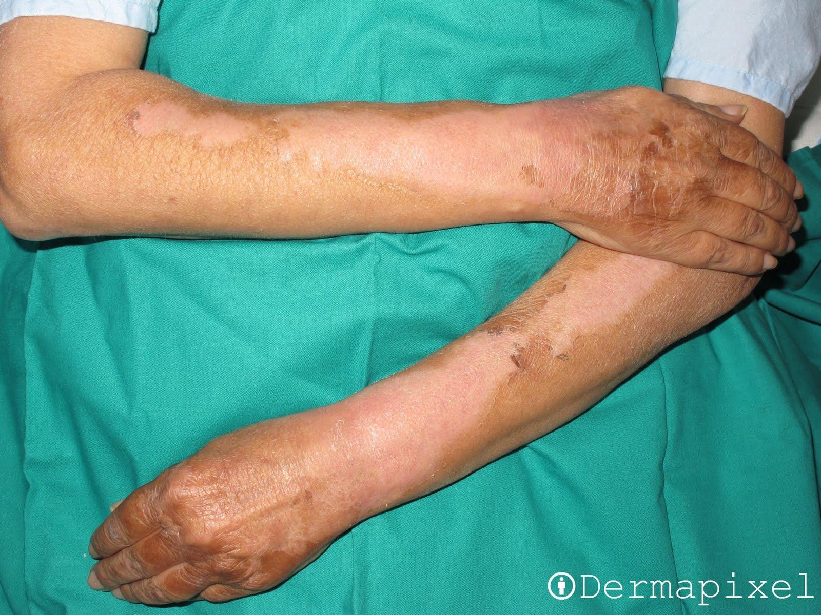 Imagen tomada a las 3 semanas de tratamiento
