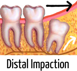 infected wisdom tooth pictures (distal impaction)