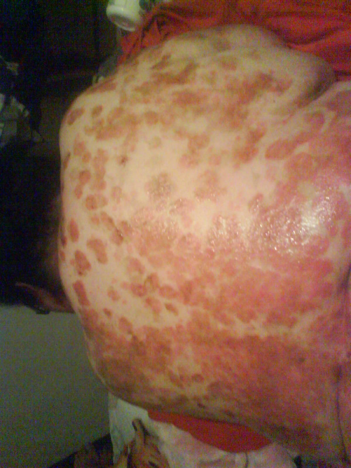 El tratamiento atopicheskogo de la dermatitis alérgica