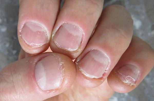 Фото ужасных ногтей на руках