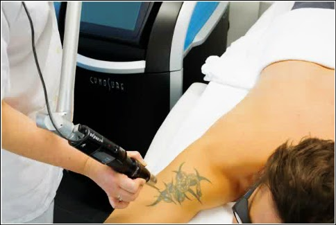 The Best and Effective Way Permanent Tattoo Removal Dallas