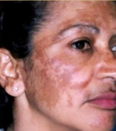 kanser kulit