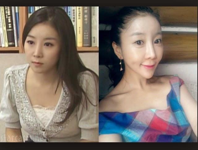 Chirurgia estetica coreana manga