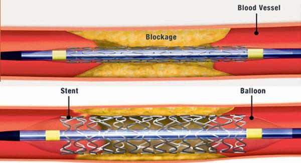 saluran darah pada jantung