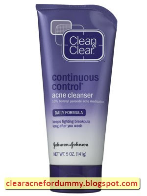 Benzoyl Peroxide Acne Wash - Assist in Zapping Those Zits!