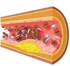 resiko penekanan kolesterol