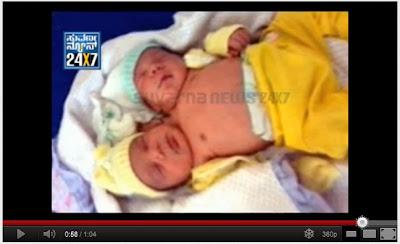 巴西婦 雙頭男嬰
