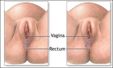 Spondylothesis And Vulva Pain - anyfreepaperscom