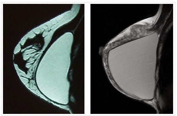 Breast Implants Teardrop Vs Round
