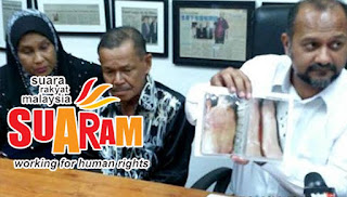 Polis cuba tutup kematian Syed Azlan – SUARAM