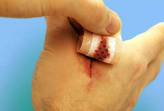 obat rumahan untuk pengobatan luka dan lecet