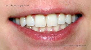 Początkowy kolor zębów przed rozpoczęciem wybielania metodą nakładkową NiteWhite