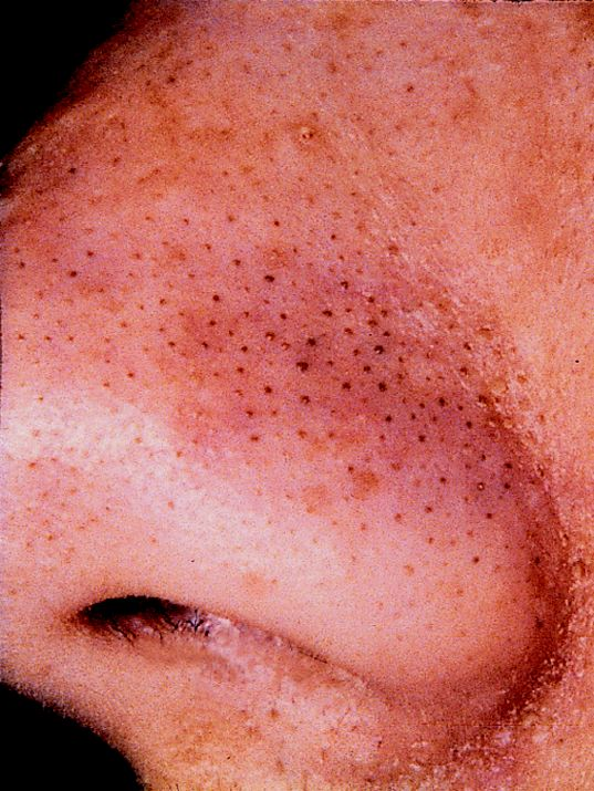 What is a blackhead acne