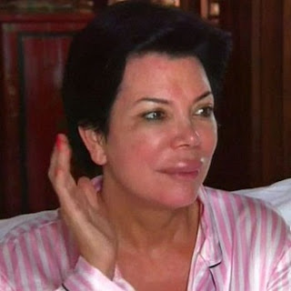Kris Jenner on Kris Jenner S Huge Trout Pout     Katerina Wilhelmina   Bloggers