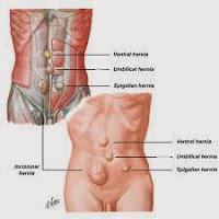obat herbal untuk hernia