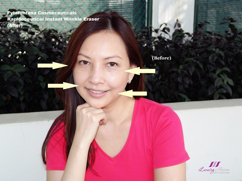 celebrity beauty blogger reviews rapidoceutical instant wrinkle erasers