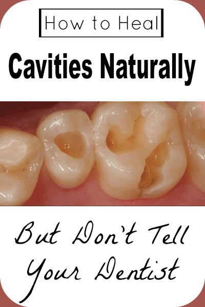 Home Remedies For Filling A Cavity
