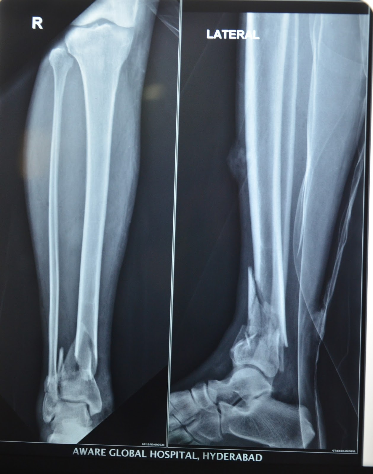 RADIOGRAPH OF RIGHT LEG SHOWING FRACTURE OF TIBIA