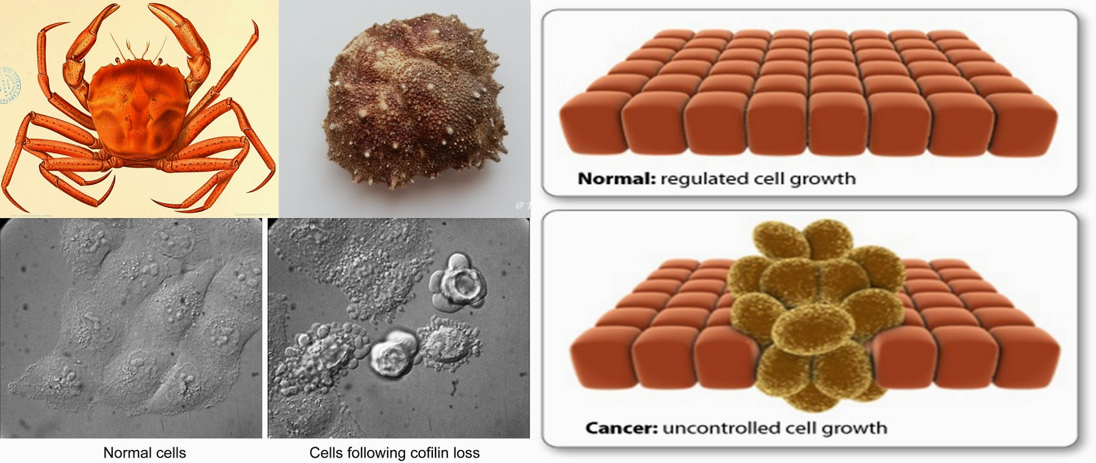 Καρκίνος, και πράγματα που δεν θα σας πουν και δεν γνωρίζετε.  3