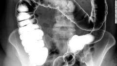 Teste de respiração pode detectar câncer colorretal