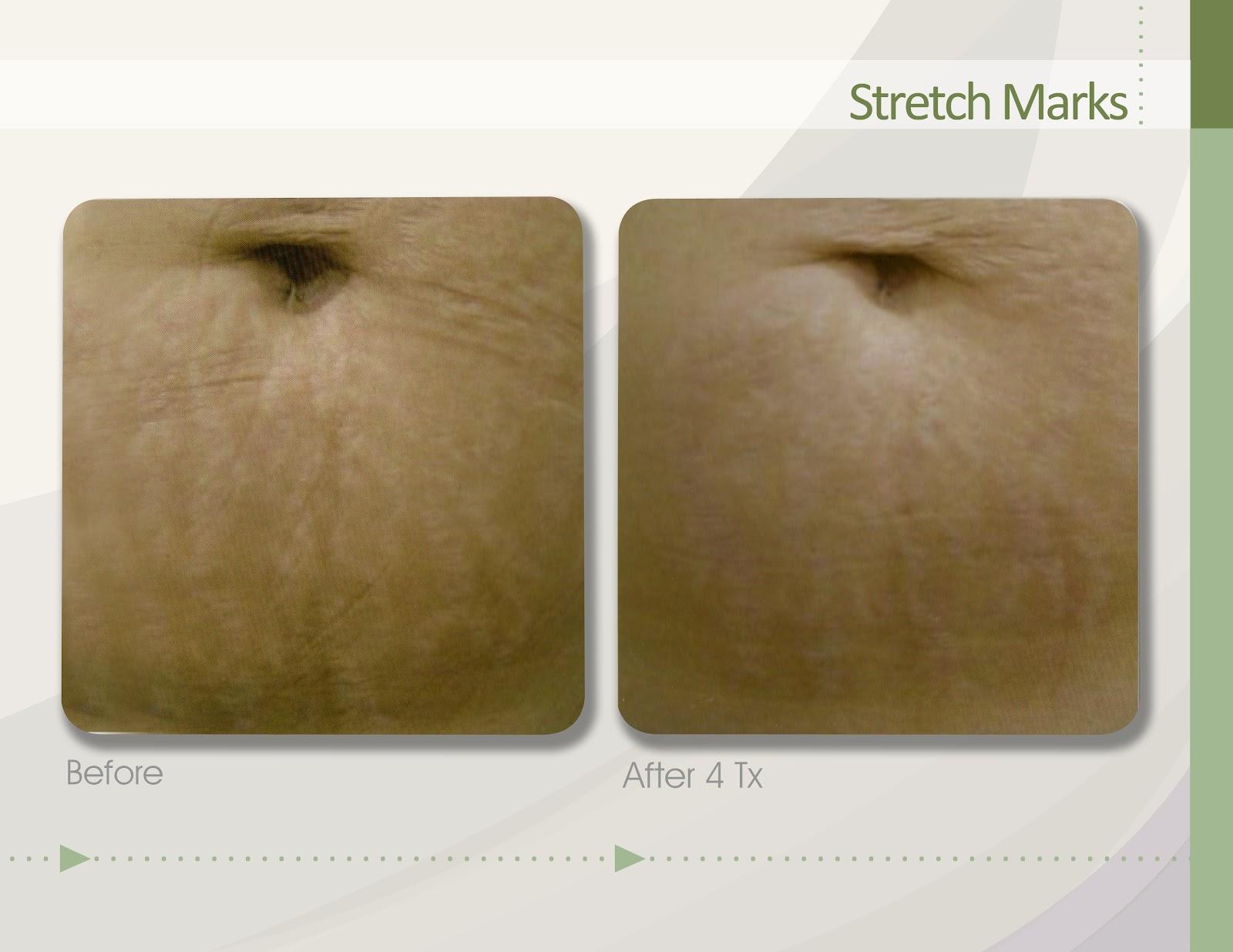 Womens fat loss 20-39 stack - advanced photo 1