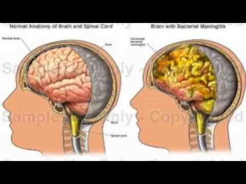 An Overview of Meningococcal Meningitis