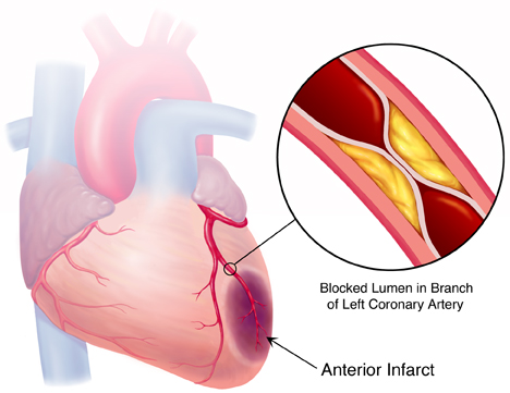 Myocardial infarction   Understanding and definition of