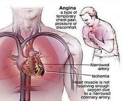 keluhan akibat penyakit jantung koroner