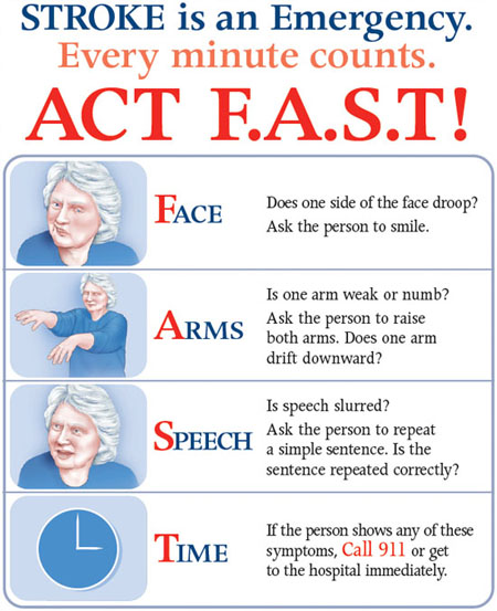 What Is A Stroke? What You Can Do To Help Someone Who Is. Staph Infection Signs Of Stroke. Vein Signs Of Stroke. Kitchen Signs Of Stroke. Wizard Oz Signs Of Stroke. Prom Signs. Stretches Signs. Fair Signs Of Stroke. Mycoplasma Pneumoniae Signs