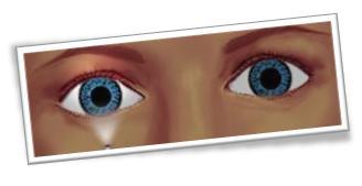 Resultado de imagen de defecto pupilar aferente relativo