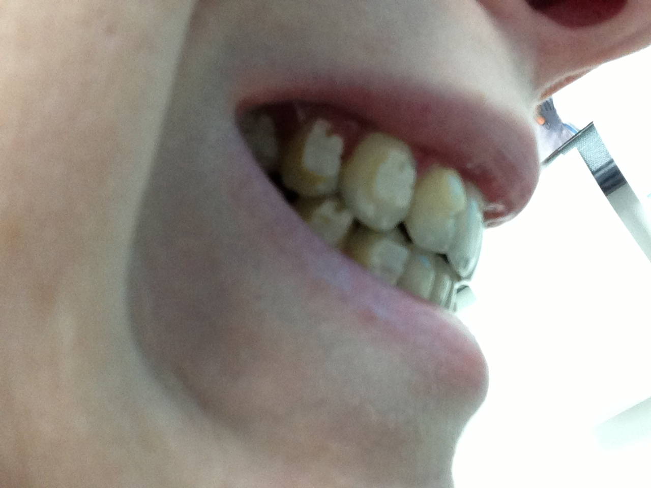 Lingual Braces Blog: New elastics configuration - After 5 weeks