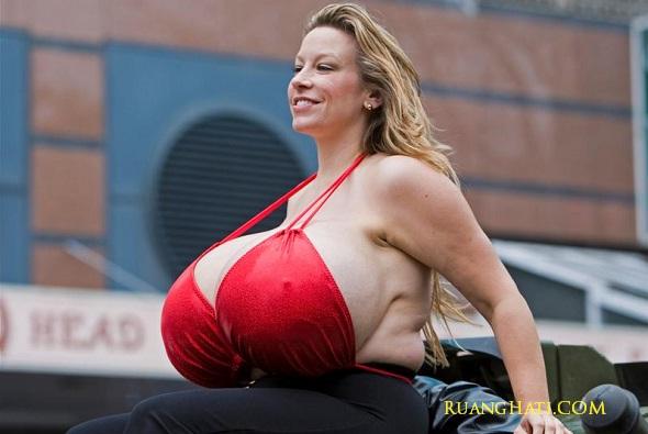 Wanita memiliki payudara seberat 25KG dan ianya terus membesar.