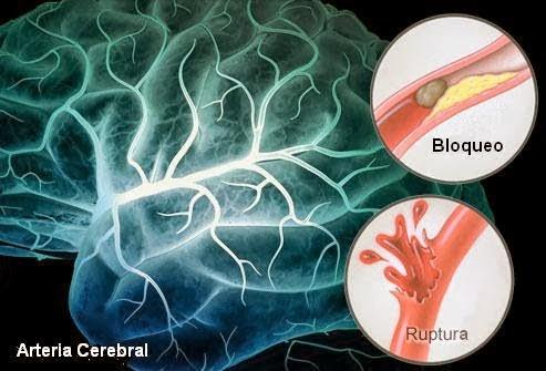 Accidente vascular encefálico isquémico