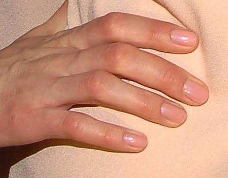 las uñas, por lo que no es un método demasiado efectivo. Prueba a limártelas o cortártelas cuando estén largas, ya que esto es bastante tentador.