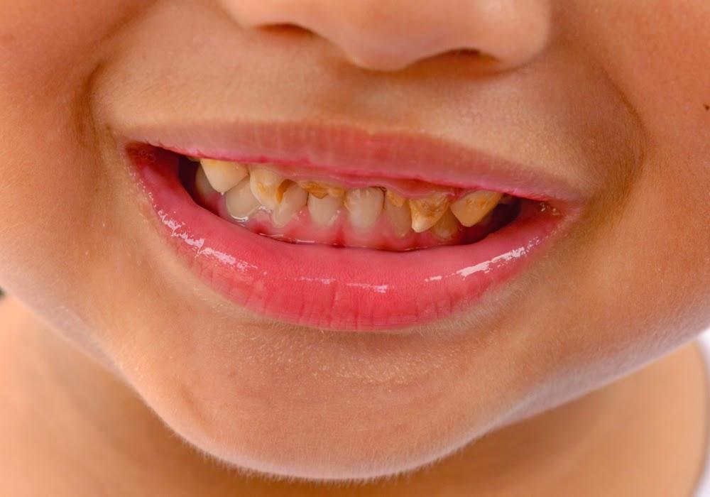 kerosakan gigi anak boleh menjejaskan keyakinan diri anak
