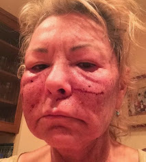 ROSEANNE'S BEAUTY TREATMENT WENT WELL