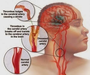 Obat Stroke Ringan Akibat Darah Tinggi