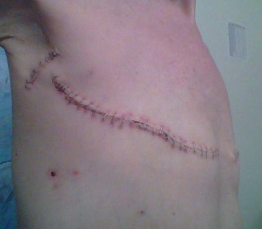 After mastectomy photos