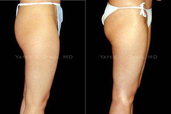 膨脹麻醉抽脂 tumescent liposuction 提臀效應