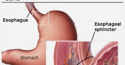 cara menyembuhkan penyakit gerd cara menyembuhkan testis