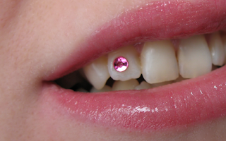 PIERCING DENTAL 2