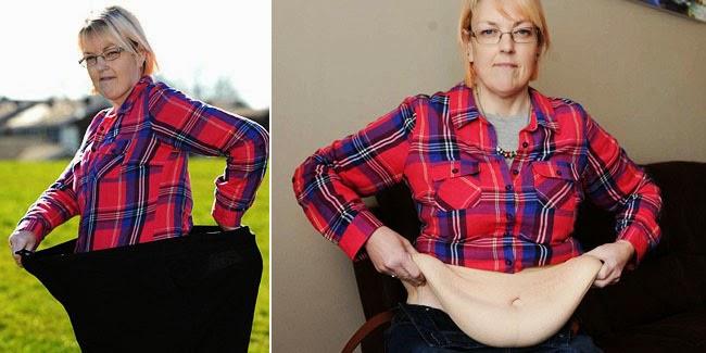Biar Kulit Nggak Bergelambir Setelah Susut Berat Badan, Ikuti 6 Aturan Mainnya