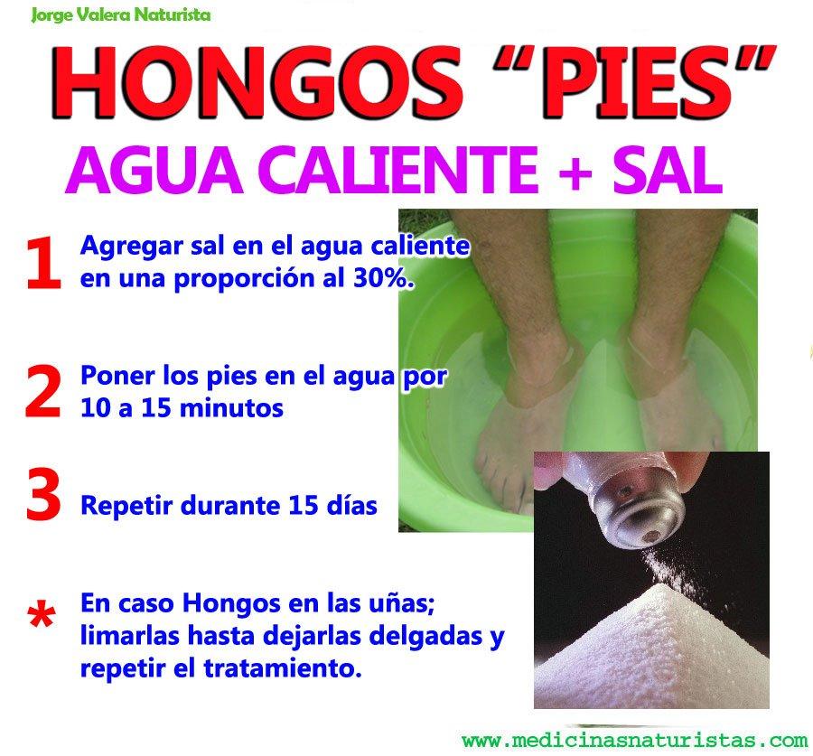 La bañera sódica para los pies del hongo de las uñas
