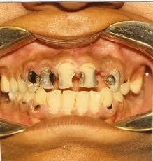 Flek Hitam Pada Gigi Karang Gigi Perawatan Gigi Adi Tukang Gigi
