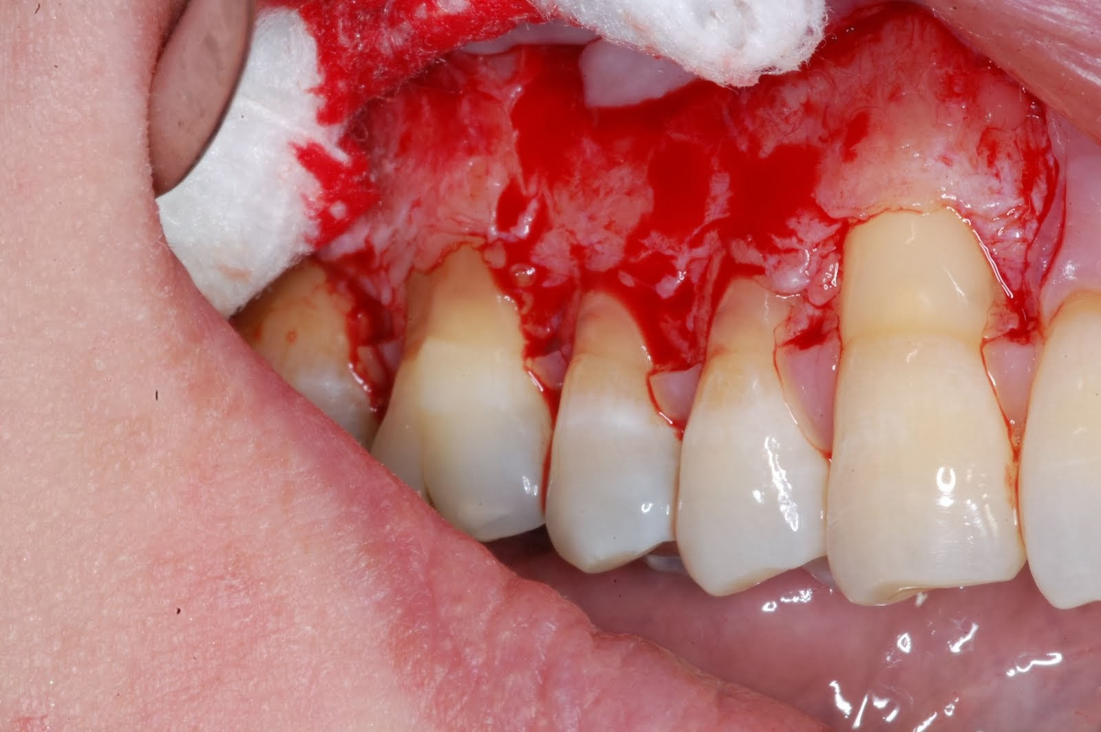 Dental Implant Tourism In India February 2014