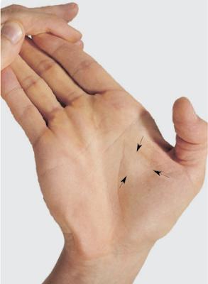 альпация мышцы, приводящей большой палец кисти, m. adductor pollicis.