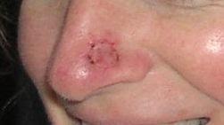 photos skin cancer