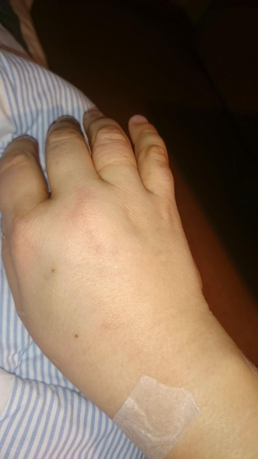 svullen arm och hand