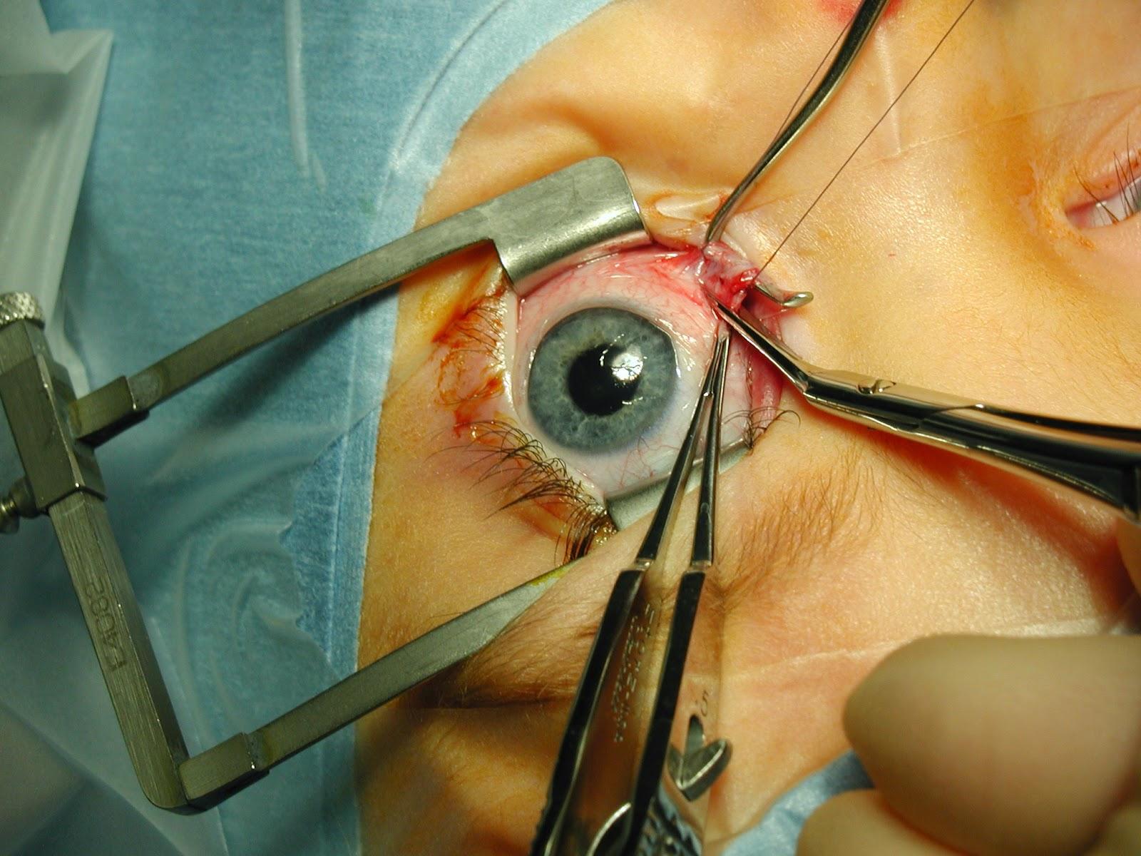 Biaya Operasi Lasik | Operasi Lasik | Lasik Mata